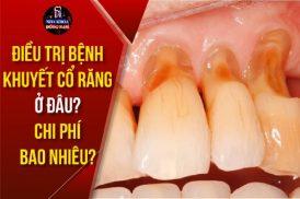 điều trị bệnh khuyết cổ chân răng ở đâu chi phí bao nhiêu
