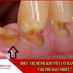 điều trị bệnh khuyết cổ răng ở đâu