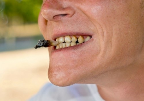 hút thuốc là nguyên nhân gây bệnh nha chu