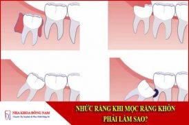 nhức răng khi mọc răng khôn thì phải làm sao