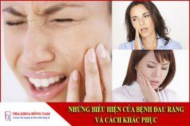 những biểu hiện của bệnh đau răng và cách khắc phục