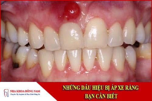 những dấu hiệu bị áp xe răng