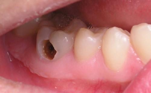 sâu răng gây áp xe