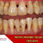 phương pháp điều trị khuyết cổ chân răng
