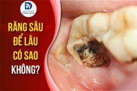 răng sâu để lâu có sao không