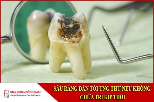 sâu răng dẫn tới ung thư nếu không chữa trị kịp thời
