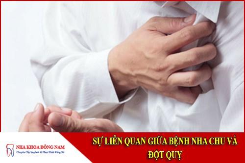 sự liên quan giữa bệnh nha chu và đột quỵ