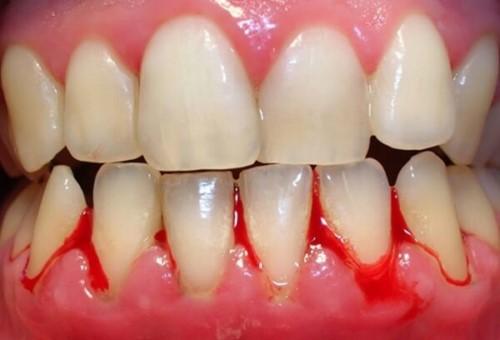 viêm nướu răng chảy máu