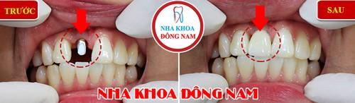 cấy implant tặng ngay vouchure Cạo vôi răng miễn phí nhân dịp Black Friday
