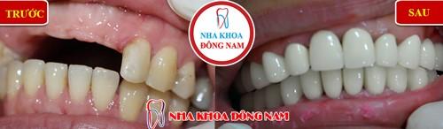 trồng răng sứ t tặng ngay vouchure Cạo vôi răng miễn phí nhân dịp Black Friday