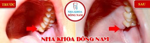nhổ răng tặng ngay vouchure Cạo vôi răng miễn phí nhân dịp Black Friday