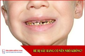bé bị sâu răng có nên nhổ không