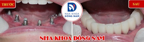 cấy implant all on 6 hàm dưới