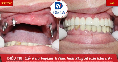cắm implant hàm trên