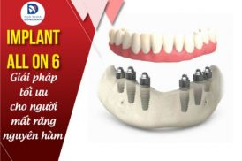 cắm ghép implant all on 6