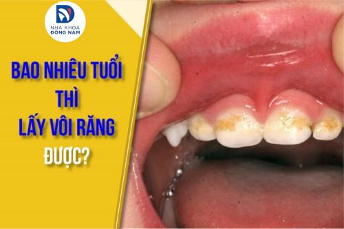 bao nhiêu tuổi thì lấy vôi răng được