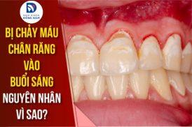 bị chảy máu chân răng vào buổi sáng nguyên nhân vì sao