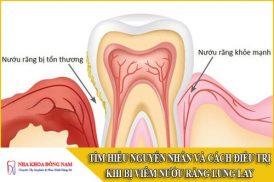 bị viêm nướu răng lung lay
