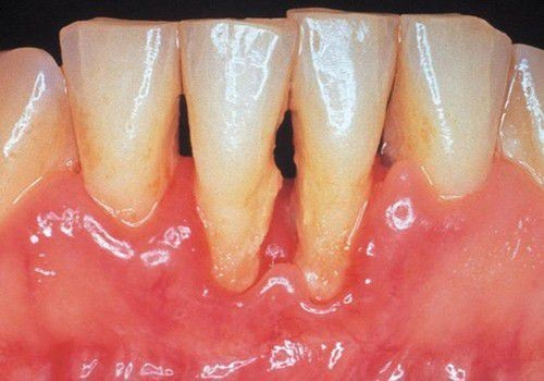 viêm nướu răng