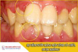 bị viêm nướu răng mãn tính chữa được không