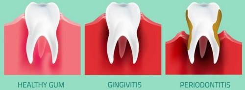 bị viêm nướu răng mãn tính có chữa khỏi được không