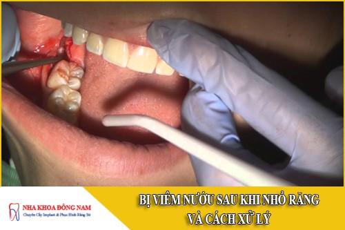 bị viêm nướu sau khi nhổ răng và cách xử lý