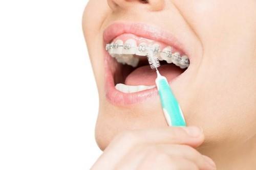 vệ sinh răng khi đeo mắc cài
