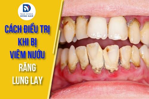 cách điều trị khi bị viêm nướu răng lung lay