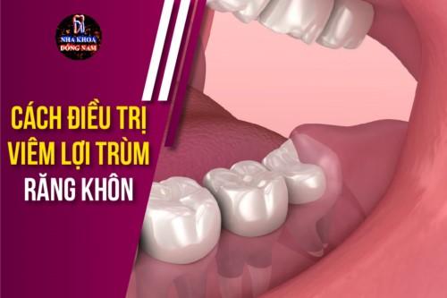 cách điều trị viêm lợi trùm răng khôn