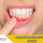 cách điều trị viêm nướu răng sau sinh