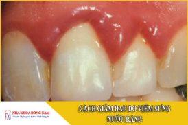 cách giảm đau do viêm sưng nướu răng