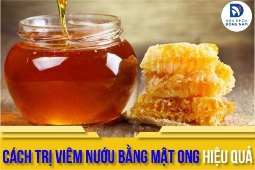 cách trị viêm nướu bằng mật ong hiệu quả