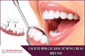 cách vệ sinh cầu răng sứ đúng chuẩn hiện nay