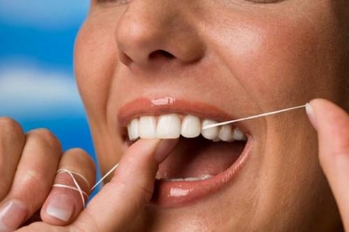 vệ sinh răng sứ bằng chỉ nha khoa