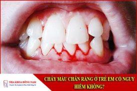 chảy máu chân răng ở trẻ em có nguy hiểm không