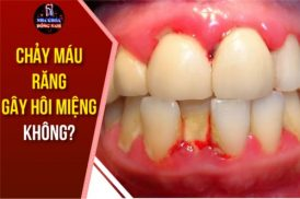 chảy máu răng gây hôi miệng khắc phục như thế nào