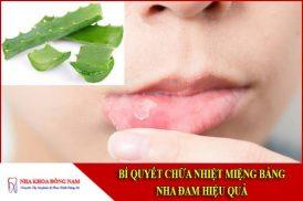 bí quyết chữa nhiệt miệng bằng nha đam hiệu quả