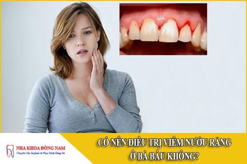 có nên điều trị viêm nướu răng ở bà bầu không