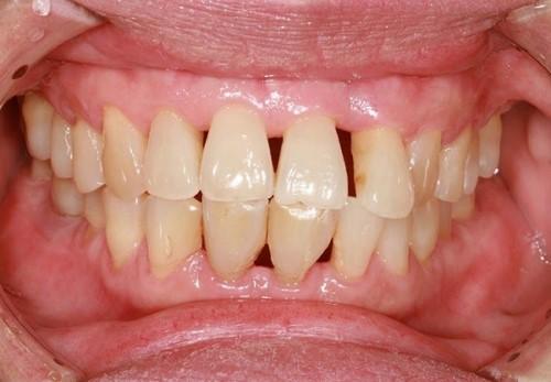 mất răng do viêm nướu răng