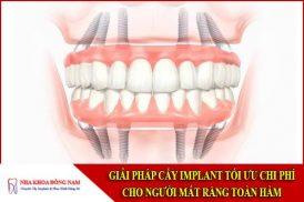 Giải pháp cấy Implant tối ưu chi phí cho người mất răng toàn hàm