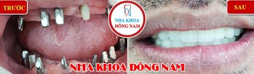 cấy implant 2 hàm