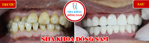 giảm 20% răng toàn sứ EMAX 1