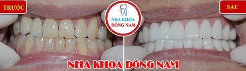 giảm 20% răng toàn sứ EMAX