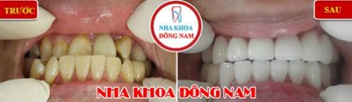 giảm 20% răng toàn sứ Zirconia 1