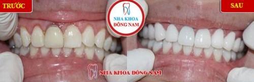 giảm 20% răng toàn sứ Zirconia