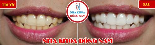giảm 50% tẩy trắng răng