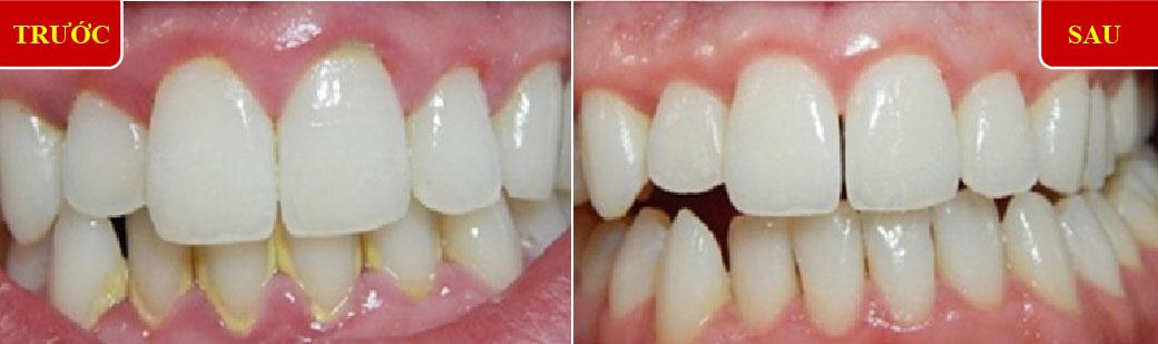 nha khoa đông nam khuyến mãi chương trình cạo vôi răng