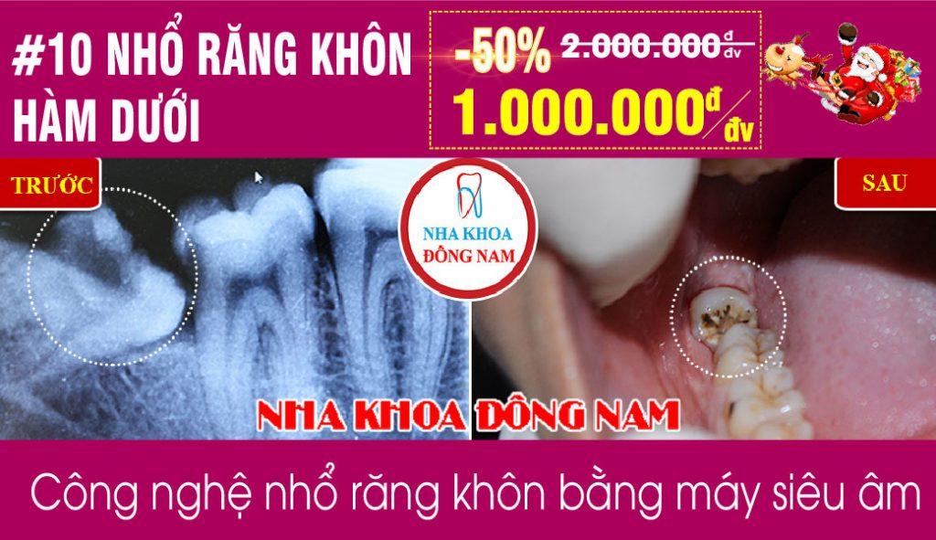 Khuyến mãi Nhổ răng khôn hàm dưới nhân dịp noel và tết tây 2019