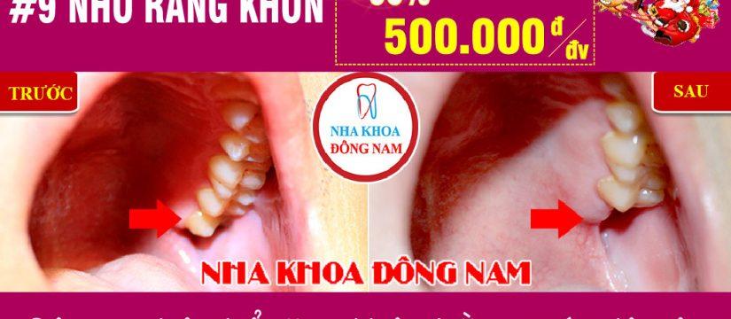 Khuyến mãi Nhổ răng khôn nhân dịp noel và tết tây 2019