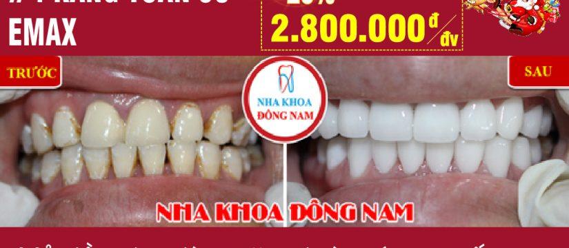 Khuyến mãi răng toàn sứ Emax nhân dịp noel và tết tây 2019